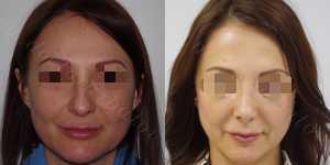 Ринопластика фото до и после — 131