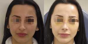 Ринопластика фото до и после — 146