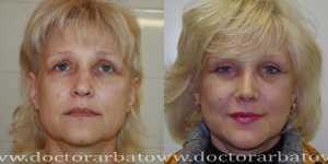 Омолаживающие операции фото до и после — 2