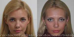 Блефаропластика фото до и после — 6
