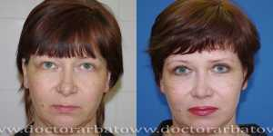 Блефаропластика фото до и после — 8