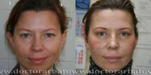 Блефаропластика фото до и после — 9