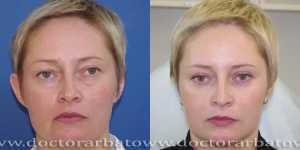 Блефаропластика фото до и после — 11