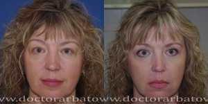 Блефаропластика фото до и после — 12