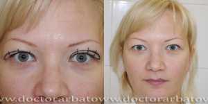 Деориентализирующая блефаропластика фото до и после — 2