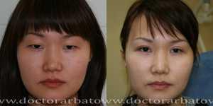 Деориентализирующая блефаропластика фото до и после — 4