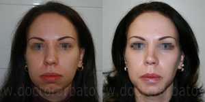 Гениопластика (коррекция подбородка) фото до и после — 1