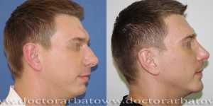 Гениопластика (коррекция подбородка) фото до и после — 3