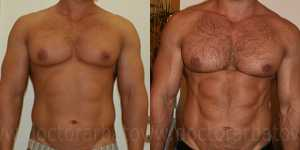 Липосакция фото до и после — 1