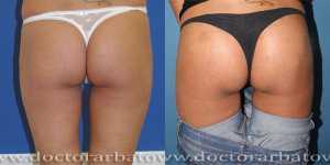 Глютеопластика (коррекция формы ягодиц) фото до и после — 3