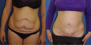 Абдоминопластика фото до и после — 1