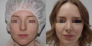 Ринопластика фото до и после — 152