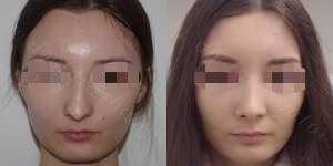Ринопластика фото до и после — 150