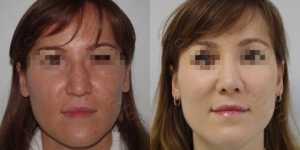 Ринопластика фото до и после — 160