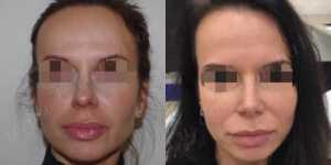 Ринопластика фото до и после —168