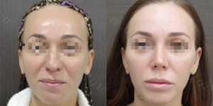 Ринопластика фото до и после —171
