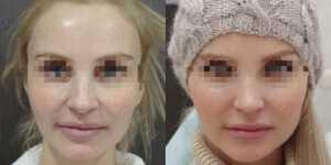 Ринопластика фото до и после —172