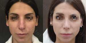 Ринопластика фото до и после —173