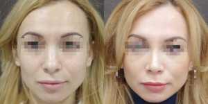 Ринопластика фото до и после —176