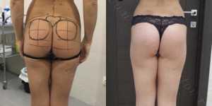 Глютеопластика (коррекция формы ягодиц) фото до и после — 6