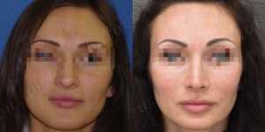 Ринопластика фото до и после —187