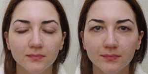 Блефаропластика фото до и после —25