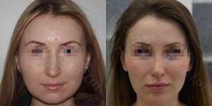 Ринопластика фото до и после —196