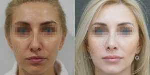 Ринопластика фото до и после —200