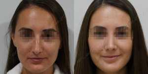 Ринопластика фото до и после —201