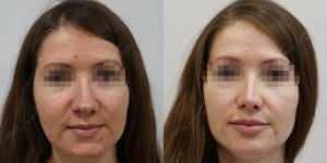 Ринопластика фото до и после —206