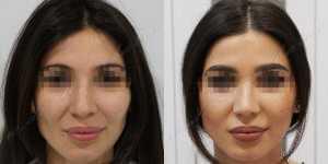 Ринопластика фото до и после — 207