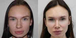 Ринопластика фото до и после — 210