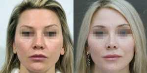 Ринопластика фото до и после — 213