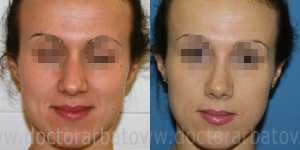 Ринопластика фото до и после — 11