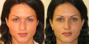 Ринопластика фото до и после — 1