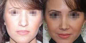 Ринопластика фото до и после — 13