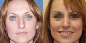 Ринопластика фото до и после — 14