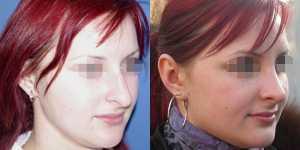 Ринопластика фото до и после — 16