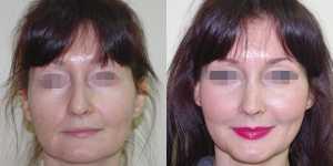 Ринопластика фото до и после — 19