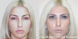 Ринопластика фото до и после — 21