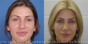 Ринопластика фото до и после — 30