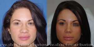 Ринопластика фото до и после — 38