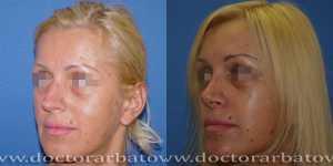 Ринопластика фото до и после — 39