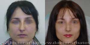 Ринопластика фото до и после — 41
