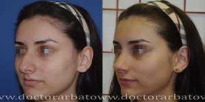 Ринопластика фото до и после — 42