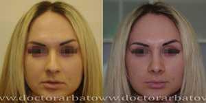 Ринопластика фото до и после — 43