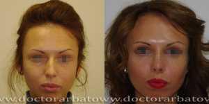 Ринопластика фото до и после — 45