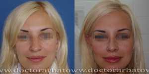 Ринопластика фото до и после — 49