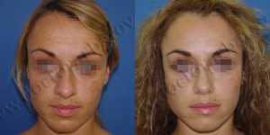 Ринопластика фото до и после — 52