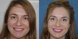 Ринопластика фото до и после — 60